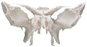 Sphenoid with Ethmoid