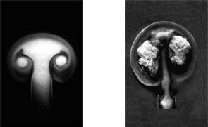 Fluid – Art of Osteopathy